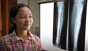 Patient Sor Sre Nichuf's broken leg was repaired by Dr. Lewis Zirkle
